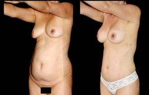 Abdominoplastia_10