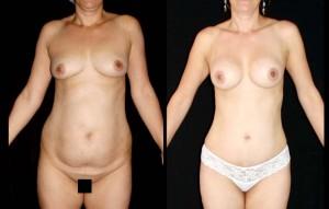 Abdominoplastia_25