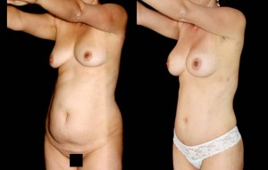 Abdominoplastia_26