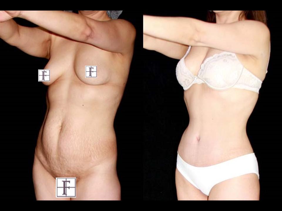 Cirugia de Abdomen - Abdominoplastia - Instituto Felipe Amaya